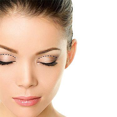Laseroterapia jest jedną z wielu metod stosowanych w medycynie estetycznej w leczeniu przebarwień. W terapii wykorzystuje się lasery Nd;Yag