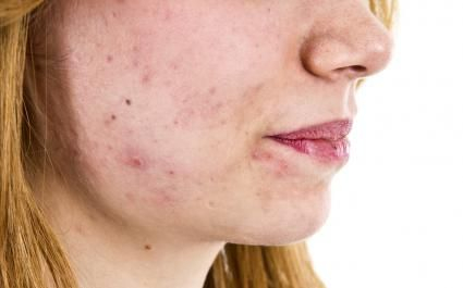 Healing Scabs on Your Face | LoveToKnow