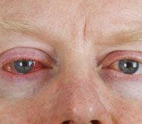 Natural remedies for bloodshot eyes.