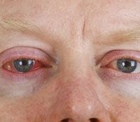 Natural remedies for bloodshot eyes.