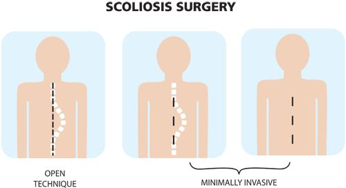 minimally invasive scoliosis surgery versus traditional scoliosis surgery