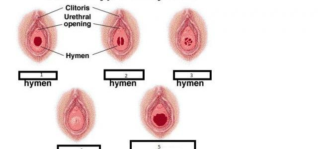 Medical pictures vaginal tissue