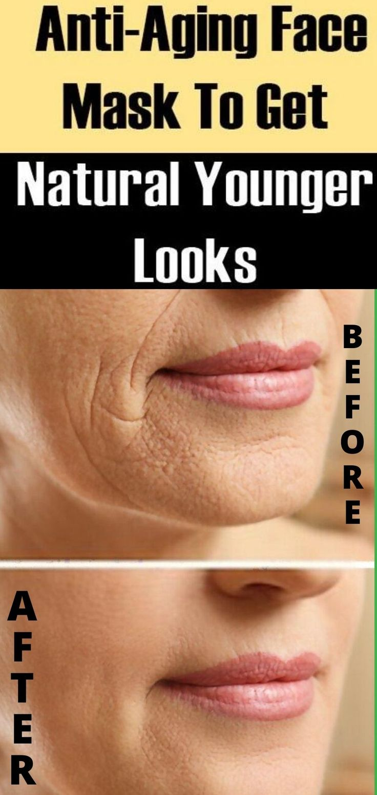 Remove Wrinkle With Homemade Cream Look 10 Years Younger