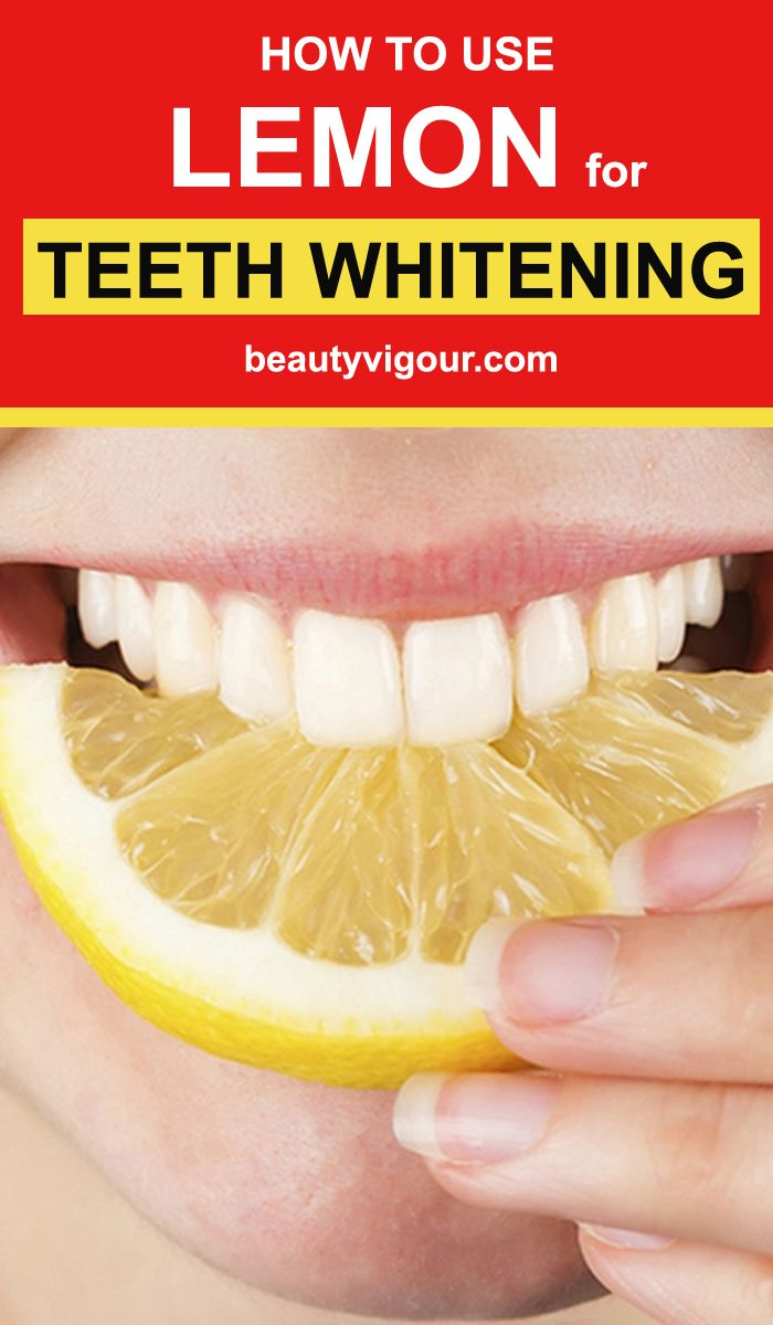 opalescence teeth whitening how to use