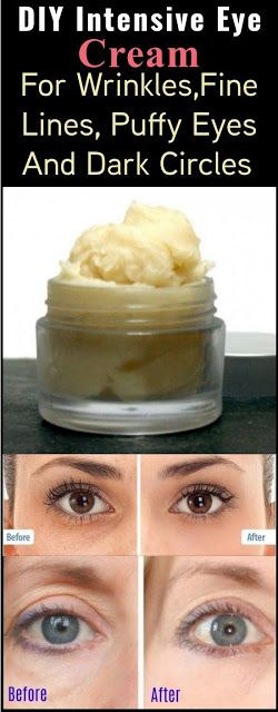 Homemade Intensive Eye Cream For Wrinkles,Fine Lines, Puffy Eyes And Dark Circles