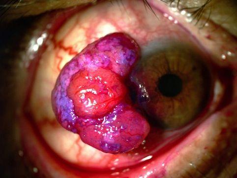 Carcinomas oculares da conjuntiva