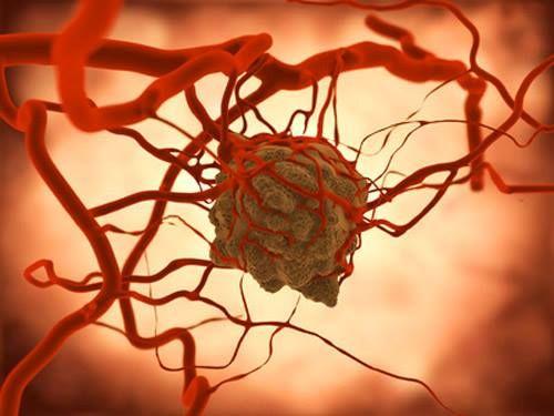 UT Southwestern Researchers Studying Deranged Metabolism To Treat Cancer: http://bionews-tx.com/news/2013/07/02/deranged-metabolism-cancer-ut-southwestern/