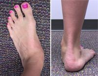Posterior Tibial Tendon Dysfunction...omg that's exactly what my foot looks like!!