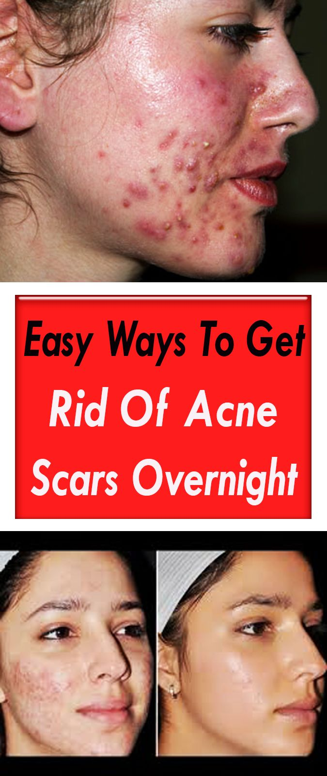 Easy Ways To Get Rid Of Acne Scars Overnight