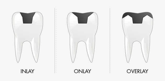 Dentistry procedures. What are Inlays and onlays . Advantages of these dental treatments. Read a bit more  here:  http://www.intermedline.com/blog/inlays-and-onlays-in-dentistry/  #dentaltreatment #dentist #dental #dentalclinic #dentaltourism