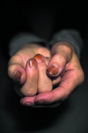 Koos Breukel / The hands of Sally Mann / 2008