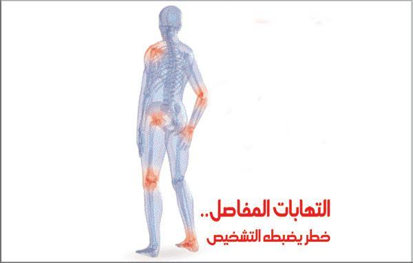 علاج التهاب مفصل الكوع بالاعشاب موسوعة Treatment Arthritis Health