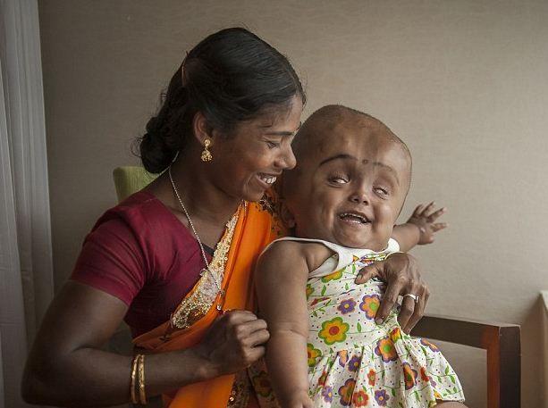 Életében először mosolygott a vízfejű indiai kislány    Bár az orvosok nem sok esélyt adtak neki, a hároméves kislány rendületlenül küzd, hogy teljes életet élhessen.  Olvass tovább: http://www.tarka-hirek.hu/hirek/eleteben-eloszor-mosolygott-a-vizfeju-indiai-kislany/