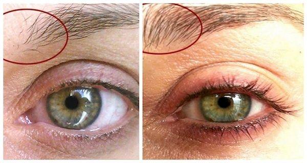 6 astuces utiles pour faire repousser vos sourcils fins ou trop épilés