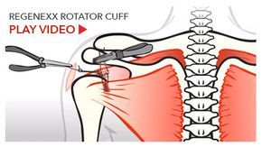 Will a Rotator Cuff Tear Heal Without Surgery?