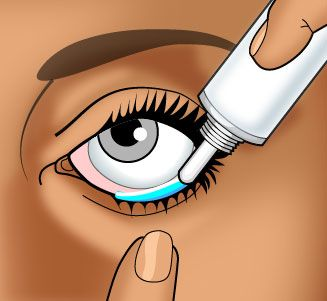 How to Use-Eye Ointments/Gels  Holding the tube between your thumb and forefinger, place it as near to your eyelid as possible without touching it.Brace the remaining fingers of that hand against your face.Tilt your head backward slightly.With your index finger, pull the lower eyelid down to form a pocket.  Squeeze a 1/4- to 1/2-inch (0.6- to 1.25-centimeter) ribbon of ointment or gel into the pocket made by the lower eyelid. Remove your index finger from the lower eyelid.  Blink your eye…
