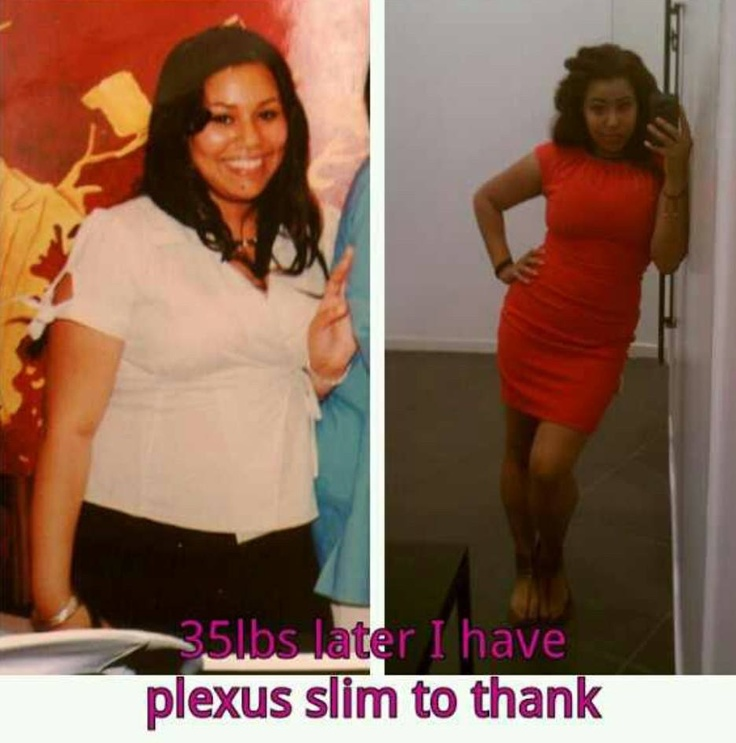 """My mother first asked me try plexus slim with her... I thought it was just another bogus diet so she sent me half of her month supply to try. I lost 11lbs the first 8days. On the 9th day I signed up to become an ambassador :) and in only a month and a half lost 35 pounds. This was all almost a year ago and I'm proud today to say I haven't gained any pounds back the weight stayed off! Plexus is real!"" ~Leah Phillips www.plexusslim.com/PinkBanana Ambassador ID# 340882"
