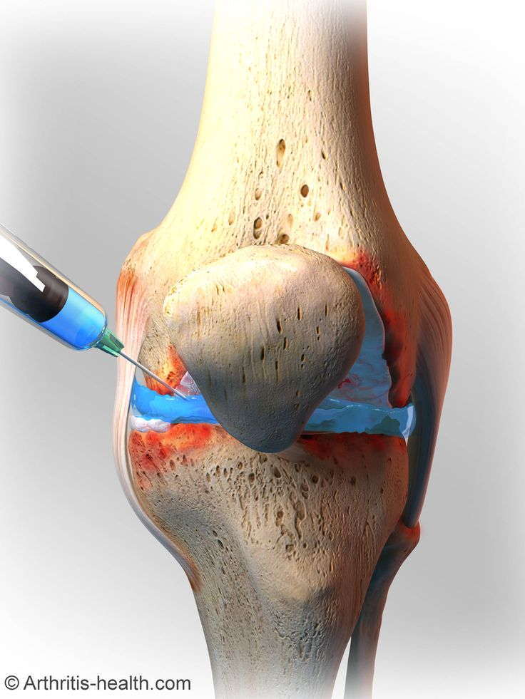 Knee injections can temporarily help the pain.  Here's what you need to know: