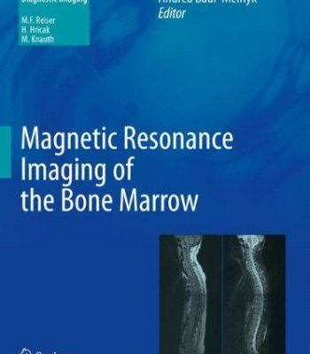 Magnetic Resonance Imaging Of The Bone Marrow PDF