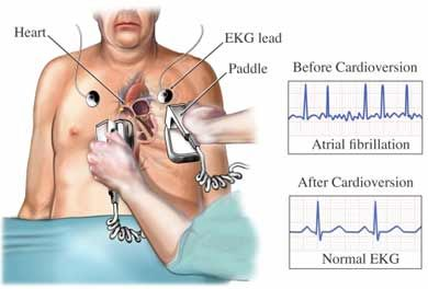 DYSRHYTHMIAS AND TREATMENTS:  ~Bradycardia (<60 BPM)  Meds: atropine, isoproterenol  Equipment: pace maker  ~Atrial fibrillation, supraventricular tachycardia, ventricular tachycardia with pulse  Meds: amiodarone, adenosine, verapamil  Equipment: synchronized cardioversion  ~Ventricular tachycardia without pulse, ventricular fibrillation  Meds: amiodarone, lidocaine, epinephrine  Equipment: defibrillation