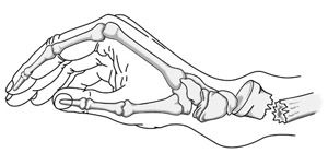 Distal Radius Fractures (Broken Wrist)-OrthoInfo - AAOS