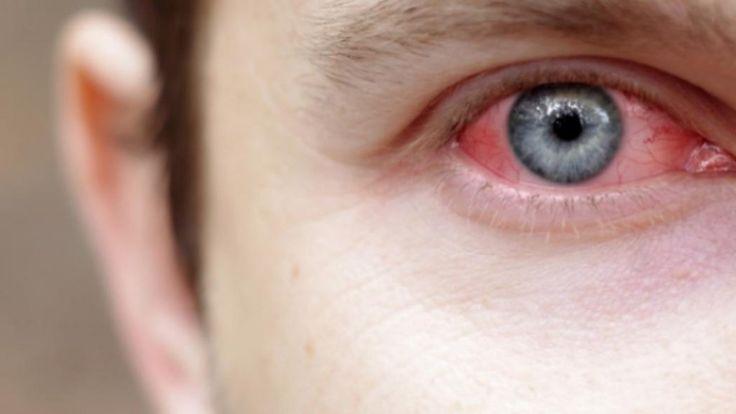 Cara Mengobati Konjungtivitis, cara mengatasi mata merah akibat konjungtivitis, pengobatan konjungtivitis, cara alami menyembuhkan konjungtivitis dengan cepat