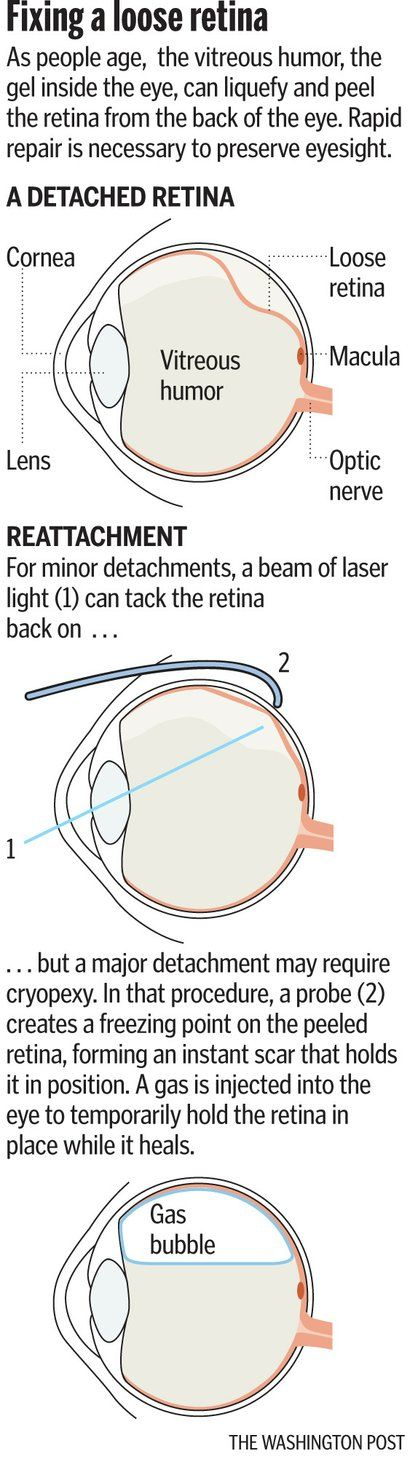 Detached retina can occur spontaneously, requires quick action