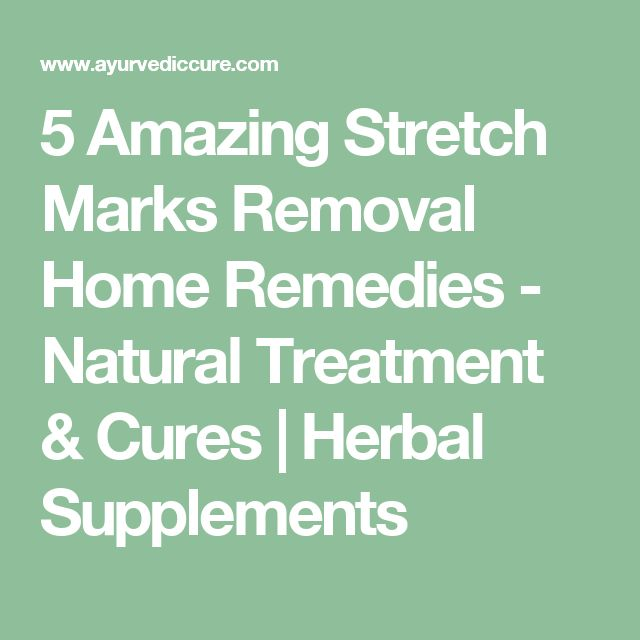 5 Amazing Stretch Marks Removal Home Remedies - Natural Treatment & Cures | Herbal Supplements