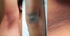 Muitas pessoas enfrentam o problema de ter axilas, joelhos ou cotovelos escuros.
