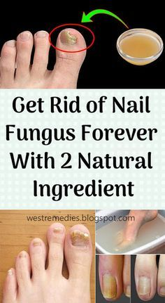 Get Rid of Nail Fungus Forever With 2 Natural Ingredient | health ...