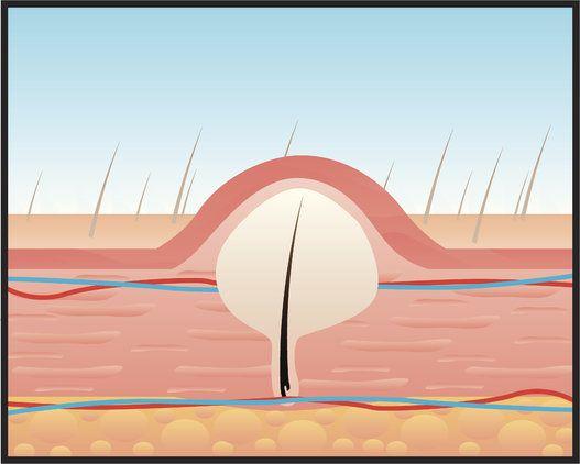 Si vous souffrez d'inconfort en lien avec les poils incarnés, vous savez à quel point ils peuvent être…