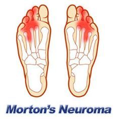 Morton's Neuroma is the swelling of nerve tissue in the forefoot, or ball-of-the-foot, which can cause severe pain. Swelling from Morton's Neuroma usually occurs between the third and fourth toes. A neuroma is also known as a benign growth that can occur in various areas of the body, although this condition is not cancerous.