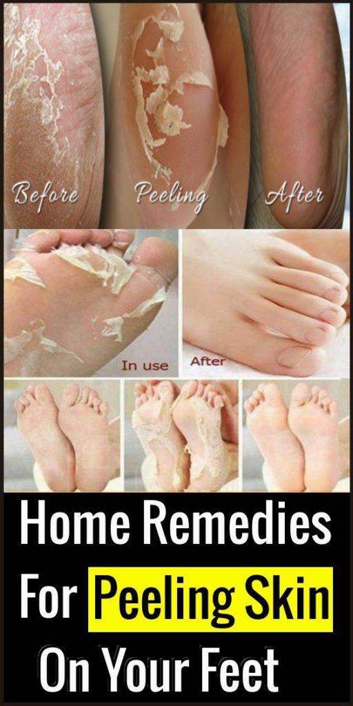 14dc233a790edc9e0b2bdeac880a06d1 - How To Get Rid Of Dry Scaly Skin On Feet