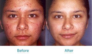 Before and after photos really tell a story.  Before you choose a cosmetic clinic, make sure they have plenty of Before/After photos of the treatment you are seeking so they can demonstrate their expertise and experience.  Click on the link to see our patients Before/After photos for Face Treatments. #cosmeticsurgery #plasticsurgery #dermalfillers https://www.sydneycosmeticclinic.com.au/before-after-galleries/face/