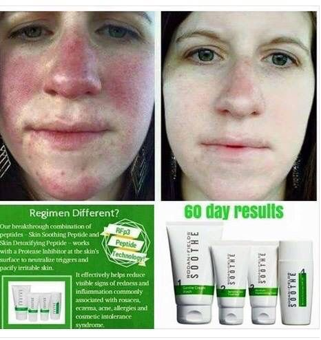 So many good stories of amazing results from those who use the Soothe regimen for their irritated or sensitive skin.  Pretty cool since this is the least medicated product in the Rodan and Fields product line.  If you or someone you know has sensitive skin and would like to try a product that will help build your skin's protective barrier, message me.