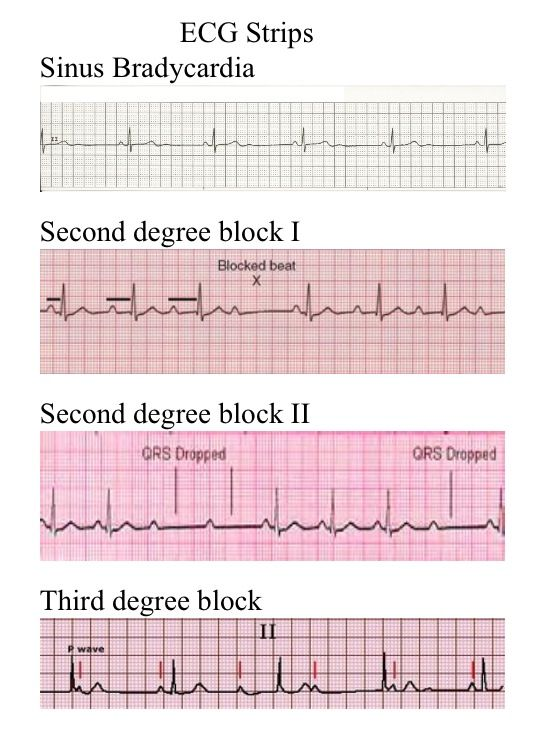 ekg rhythm strips of heart block Faith indifferent