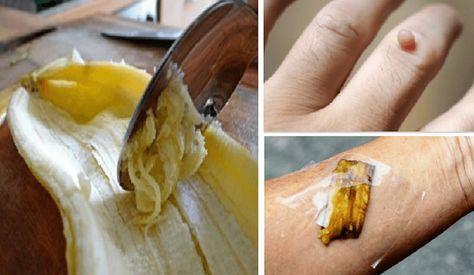 Mai gettare la buccia di banana! Ecco i suoi benefici sono strepitosi | Pane e Circo | Bloglovin'