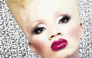 Thando Hopa - South African albino model