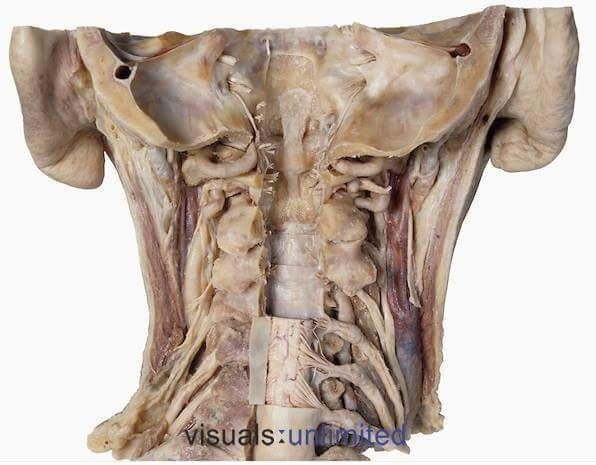Awesome perspective of the anatomy of the neck. You can see so much!  The arteria vertebralis running at the side of the vertebral column, going way up towards the brain. Also you can see the spinal cord with the radices of spinal nerves originating there. Then there's the backside of the vertebral column, the dura mater, the V. jugularis interna (dark large vessel at the sides of the neck) and and and.. :)  Image by Ralph Hutchings, Visuals unlimited