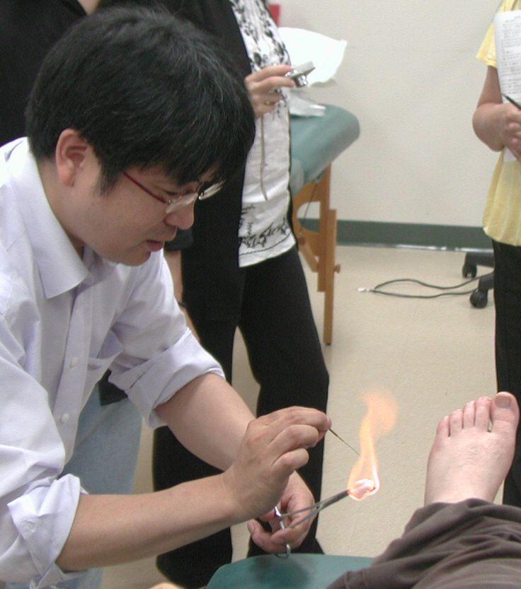 灸法臨床研究会、火鍼 Fire Needle