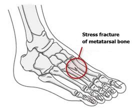 Stress Fractures   http://www.osmsgb.com/Education.aspx  #footinjuries #stressfractures #metatarsals