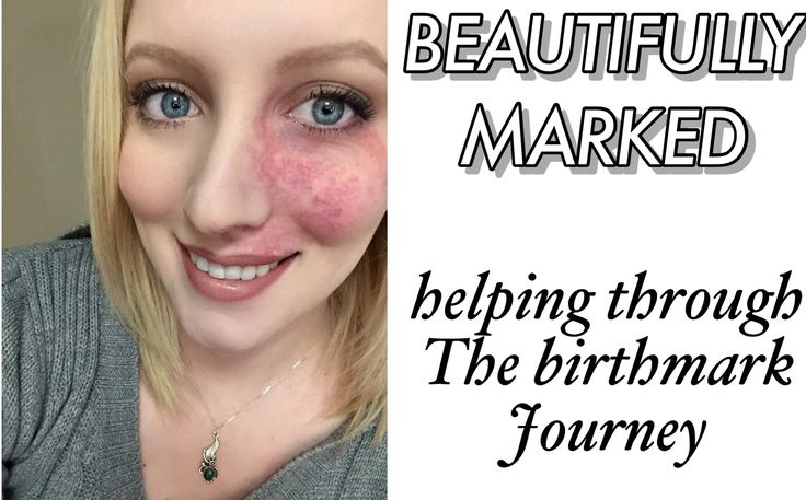 Today we have Rachel as our blogger in the Spotlight, Rachel blogs over at Beautifully Marked, a blog dedicated to helping anyone who has difficulty with accepting their birthmarks. This is a truly inspiring blog that does and will help so many others.  A port wine stain can cause a lot of …
