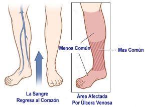 Estas úlceras generalmente se forman en los lados de la pierna inferior, por encima del tobillo y por debajo de la pantorrilla. Las úlceras venosas o varicosas de la piel se curan muy lentamente y con frecuencia pueden volver a salir si no se toman medidas para prevenirlas. Una úlcera venosa en la piel también se le conoce como úlcera por estasis venosa o venoestasis, que significa detención, estancamiento o circulación muy lenta de la sangre en las venas.