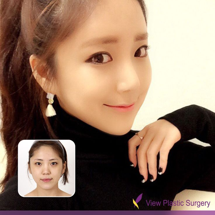 before and after, plastic surgery, asian plastic surgery, eye surgery, double eyelid surgery, rhinoplasty, faical bone contouring