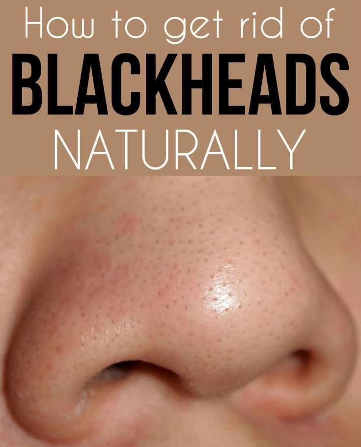 How to get rid of blackheads naturally - TopFashiondiy.org