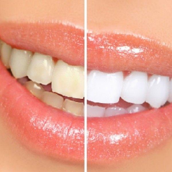 Cómo blanquear los dientes sencilla y naturalmente   La Bioguía