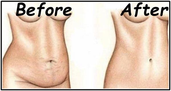 Wil je een paar kilo eraf? Met dit effectieve middel kun jij in 4 dagen een slankere taille krijgen! - Gezonde ideetjes