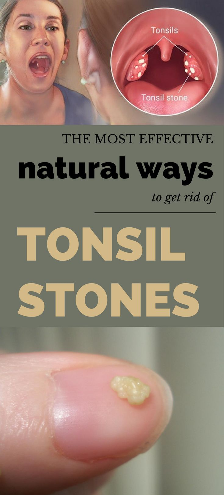 Natural Ways To Get Rid Of Tonsil Stones