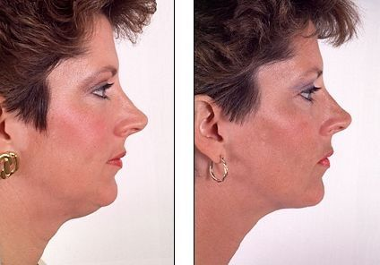 Do Facial Fitness Exercises Truly Work For An Organic Facelift?