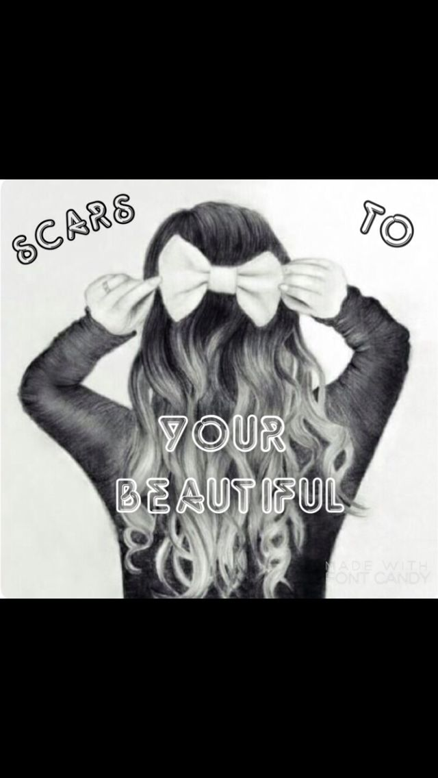 Scars to your beautiful.
